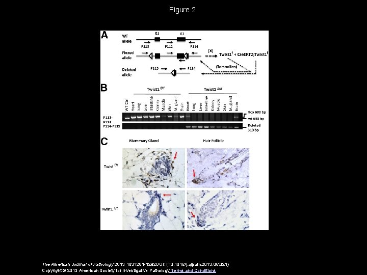 Figure 2 The American Journal of Pathology 2013 1831281 -1292 DOI: (10. 1016/j. ajpath.