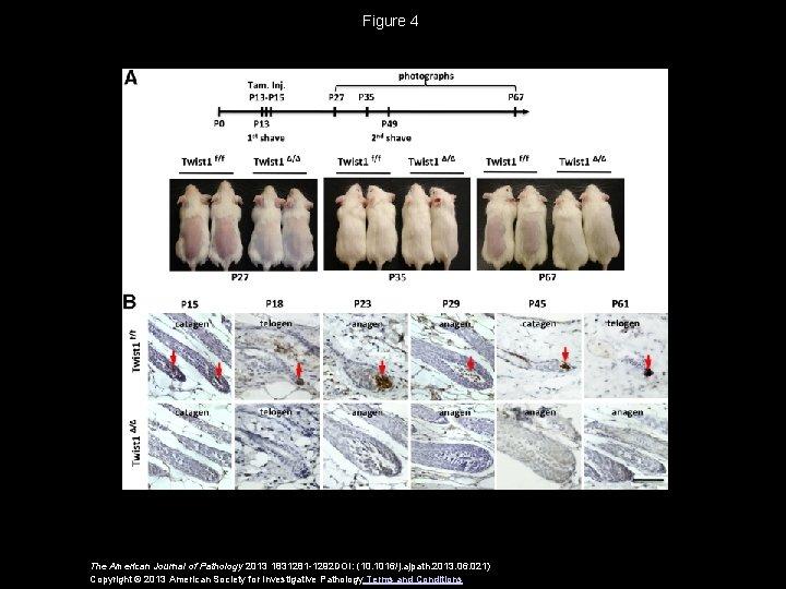 Figure 4 The American Journal of Pathology 2013 1831281 -1292 DOI: (10. 1016/j. ajpath.