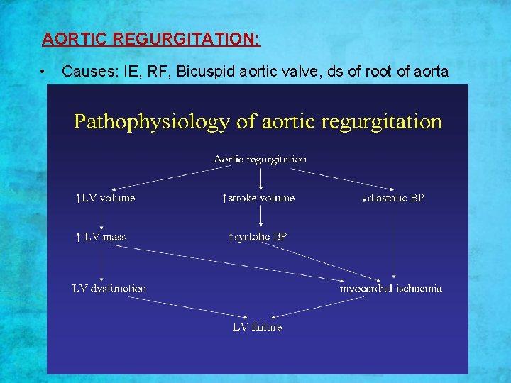 AORTIC REGURGITATION: • Causes: IE, RF, Bicuspid aortic valve, ds of root of aorta