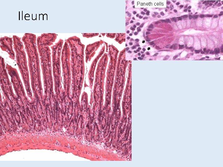 Paneth cells Ileum