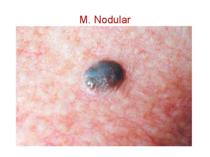 M. Nodular