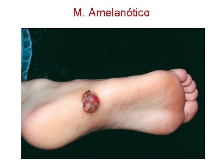 M. Amelanótico