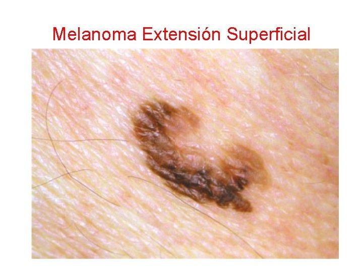Melanoma Extensión Superficial