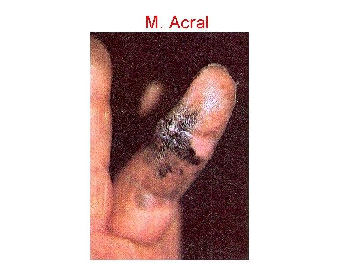 M. Acral