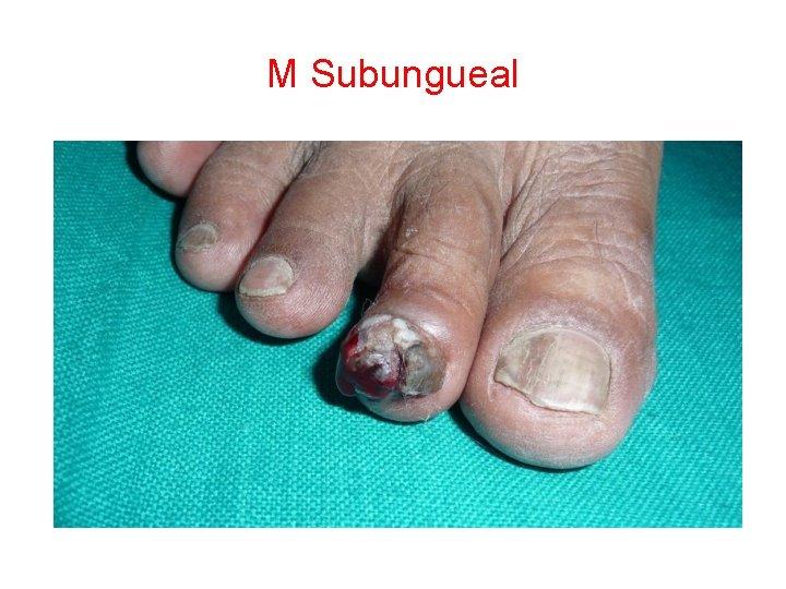 M Subungueal