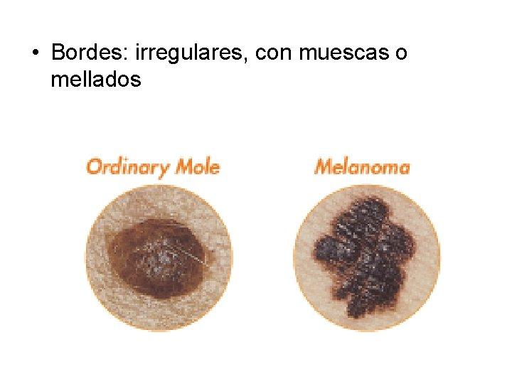 • Bordes: irregulares, con muescas o mellados