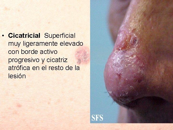 • Cicatricial Superficial muy ligeramente elevado con borde activo progresivo y cicatriz atrófica