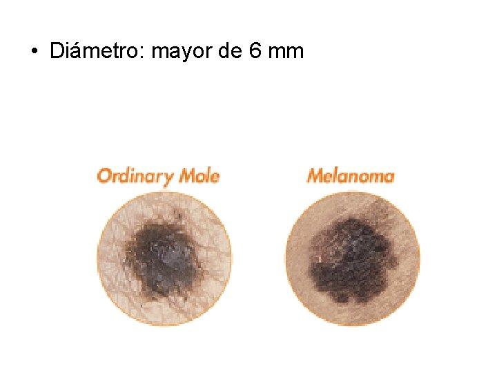 • Diámetro: mayor de 6 mm