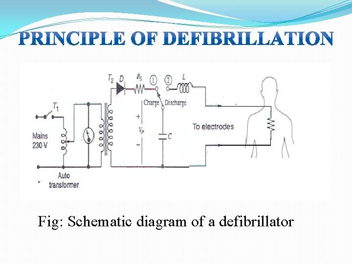 Fig: Schematic diagram of a defibrillator
