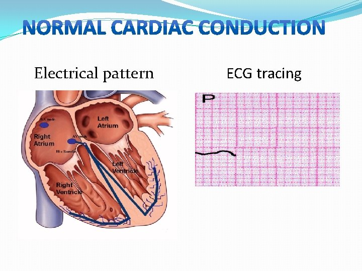 Electrical pattern ECG tracing