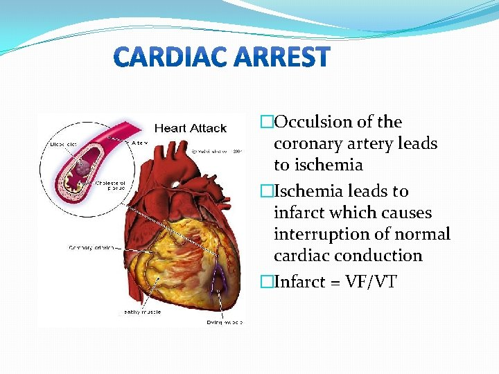 �Occulsion of the coronary artery leads to ischemia �Ischemia leads to infarct which causes