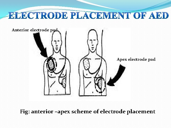 Anterior electrode pad Apex electrode pad Fig: anterior –apex scheme of electrode placement