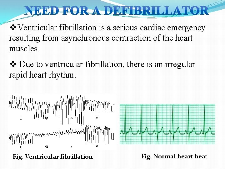 v. Ventricular fibrillation is a serious cardiac emergency resulting from asynchronous contraction of the