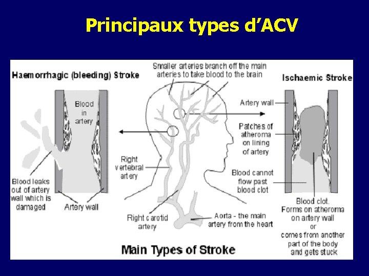 Principaux types d'ACV
