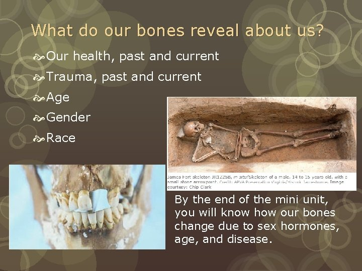 What do our bones reveal about us? Our health, past and current Trauma, past
