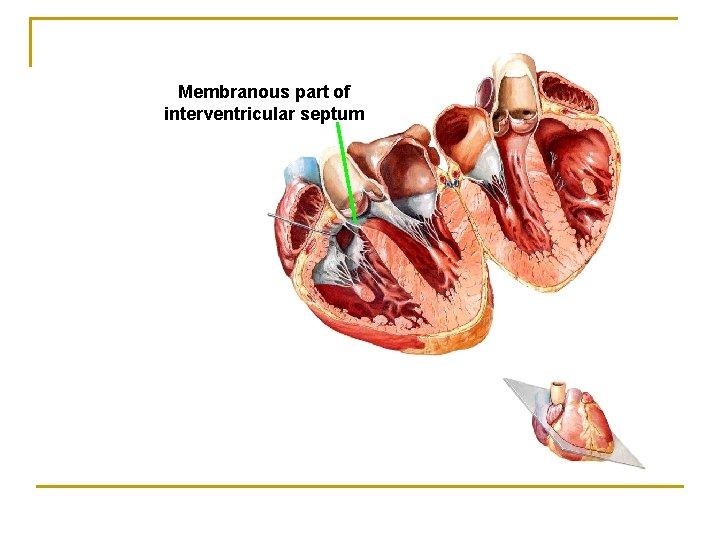 Membranous part of interventricular septum