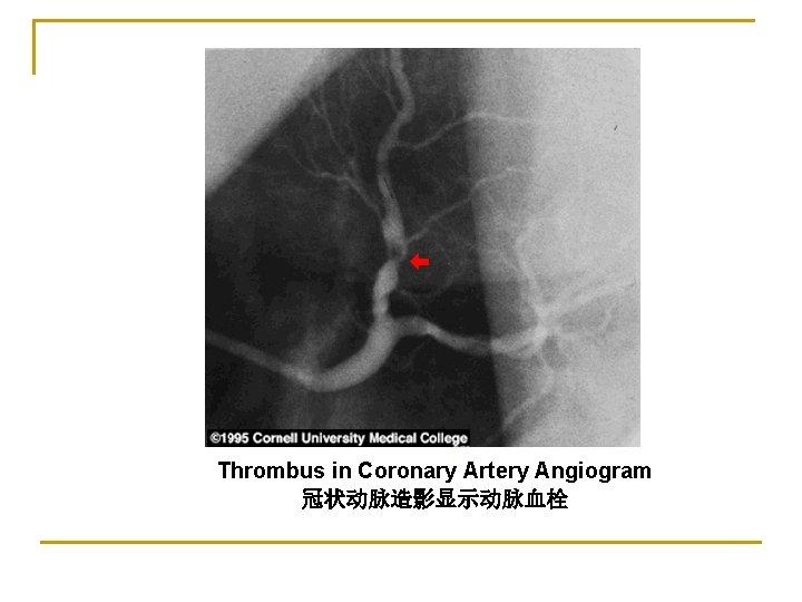 Thrombus in Coronary Artery Angiogram 冠状动脉造影显示动脉血栓