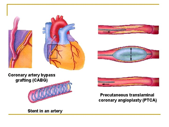 Coronary artery bypass grafting (CABG) Precutaneous translaminal coronary angioplasty (PTCA) Stent in an artery