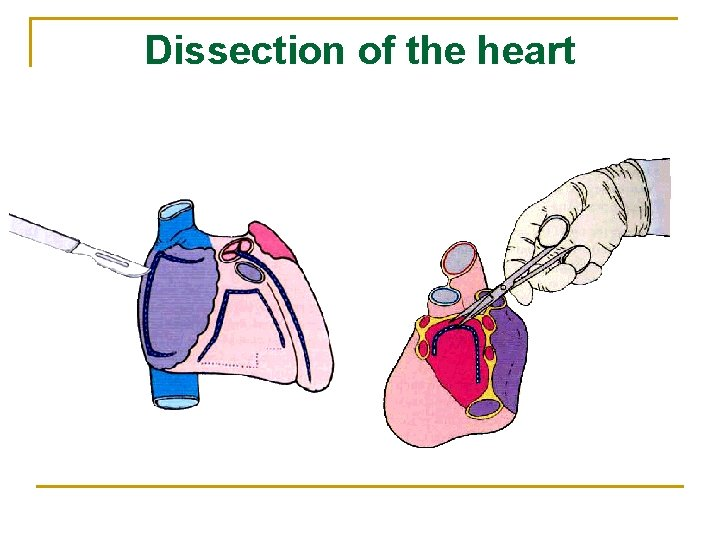 Dissection of the heart