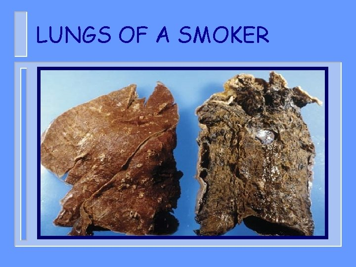 LUNGS OF A SMOKER