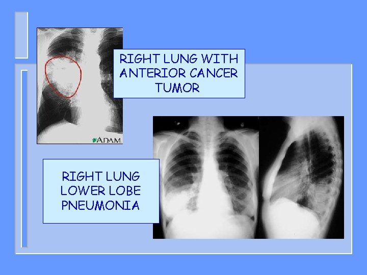 RIGHT LUNG WITH ANTERIOR CANCER TUMOR RIGHT LUNG LOWER LOBE PNEUMONIA