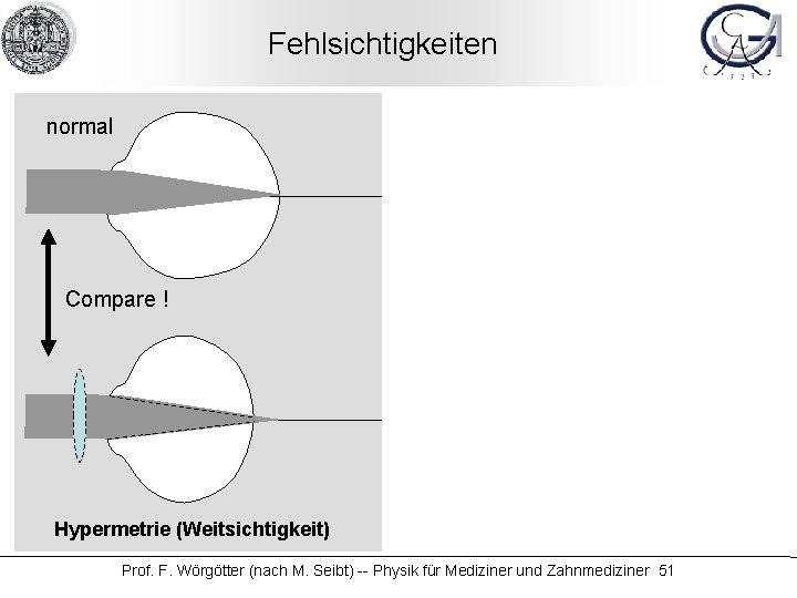 Fehlsichtigkeiten normal Compare ! Hypermetrie (Weitsichtigkeit) Compare ! Myopie (Kurzsichtigkeit) Prof. F. Wörgötter (nach