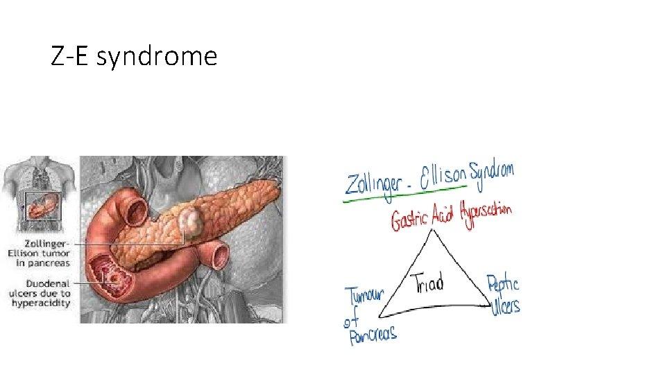 Z-E syndrome
