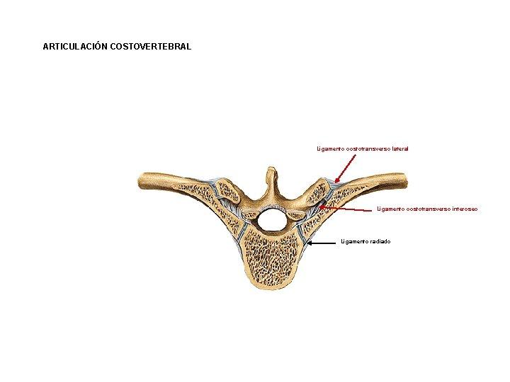 ARTICULACIÓN COSTOVERTEBRAL Ligamento costotransverso lateral Ligamento costotransverso interoseo Ligamento radiado