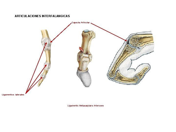 ARTICULACIONES INTERFALANGICAS Capsula Articular Ligamentos laterales Ligamento Metacarpiano Interoseo