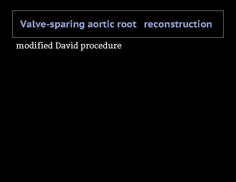 Valve-sparing aortic root reconstruction modified David procedure