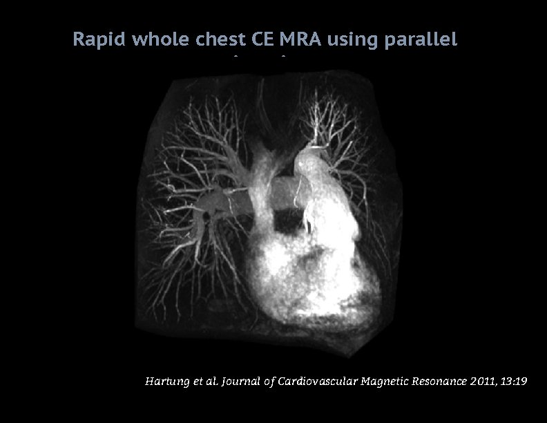 Rapid whole chest CE MRA using parallel imaging Hartung et al. Journal of Cardiovascular