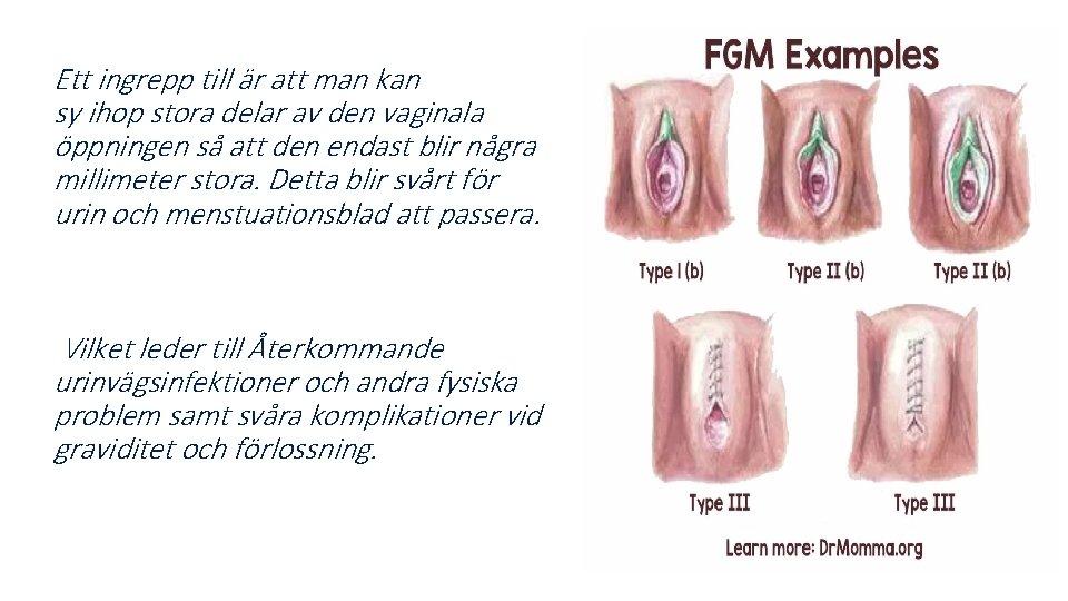 Ett ingrepp till är att man kan sy ihop stora delar av den vaginala