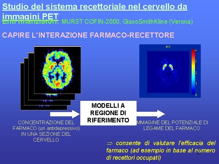 Studio del sistema recettoriale nel cervello da immagini PET Enti finanziatori: MURST COFIN-2000, Glaxo.