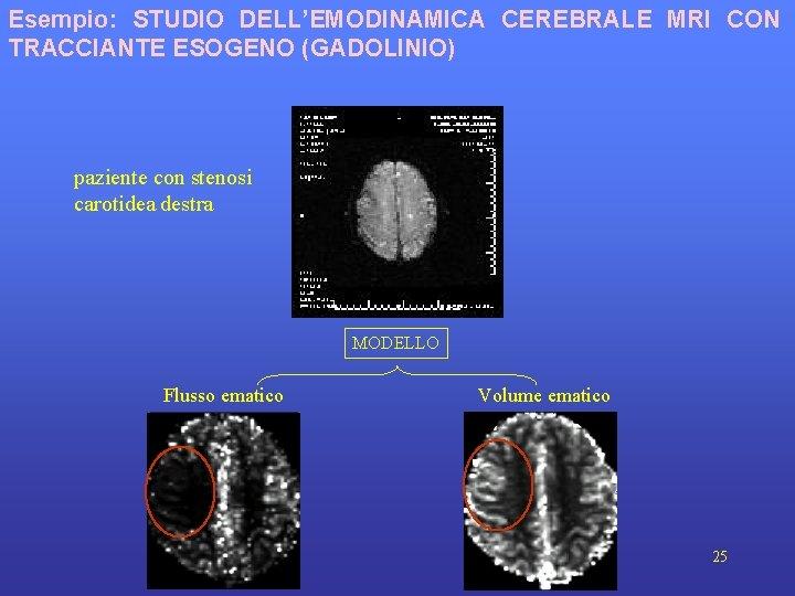 Esempio: STUDIO DELL'EMODINAMICA CEREBRALE MRI CON TRACCIANTE ESOGENO (GADOLINIO) paziente con stenosi carotidea destra