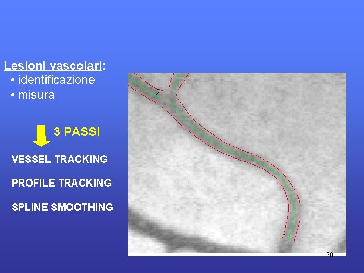 Lesioni vascolari: • identificazione • misura 3 PASSI VESSEL TRACKING PROFILE TRACKING SPLINE SMOOTHING