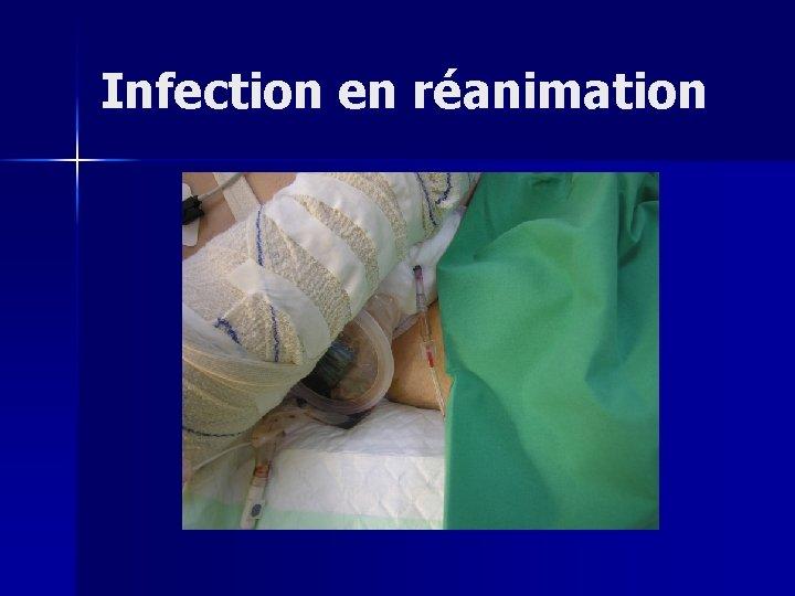 Infection en réanimation