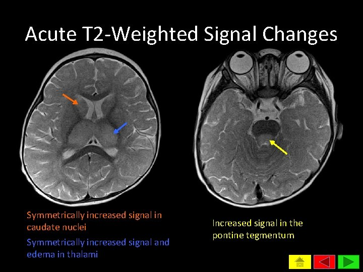 Acute T 2 -Weighted Signal Changes Symmetrically increased signal in caudate nuclei Symmetrically increased