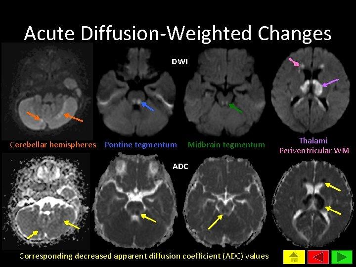 Acute Diffusion-Weighted Changes DWI Cerebellar hemispheres Pontine tegmentum Midbrain tegmentum ADC Corresponding decreased apparent
