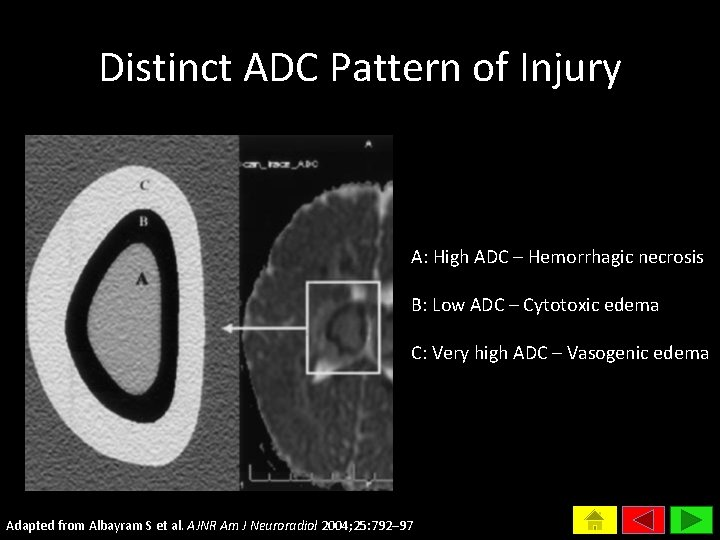 Distinct ADC Pattern of Injury A: High ADC – Hemorrhagic necrosis B: Low ADC