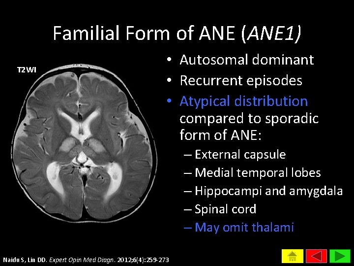 Familial Form of ANE (ANE 1) T 2 WI • Autosomal dominant • Recurrent