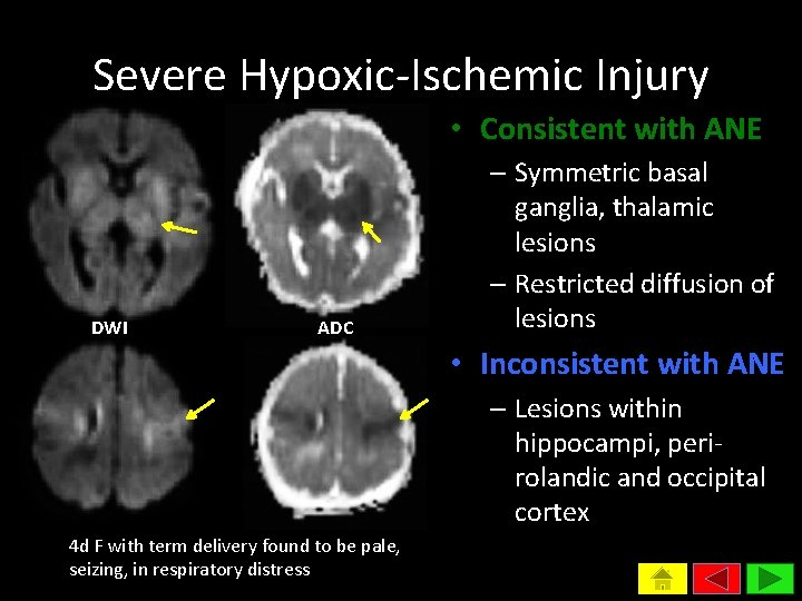 Severe Hypoxic-Ischemic Injury • Consistent with ANE DWI ADC – Symmetric basal ganglia, thalamic