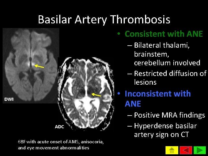Basilar Artery Thrombosis • Consistent with ANE – Bilateral thalami, brainstem, cerebellum involved –