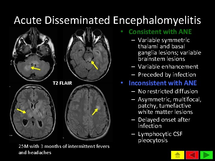 Acute Disseminated Encephalomyelitis • Consistent with ANE – Variable symmetric thalami and basal ganglia