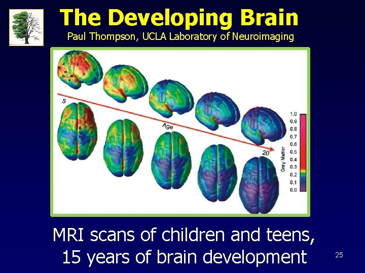 The Developing Brain Paul Thompson, UCLA Laboratory of Neuroimaging MRI scans of children and