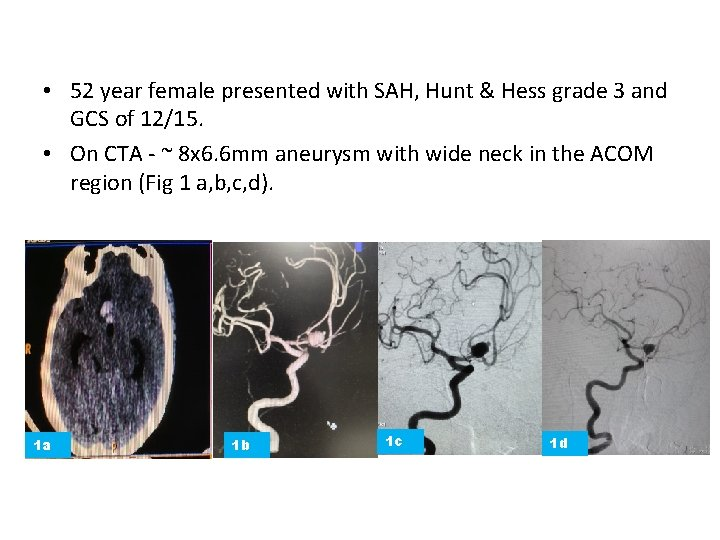 • 52 year female presented with SAH, Hunt & Hess grade 3 and