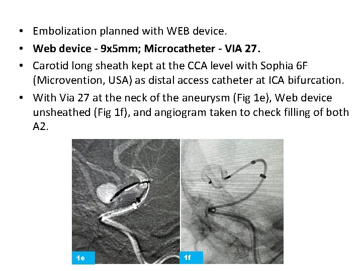 • Embolization planned with WEB device. • Web device - 9 x 5