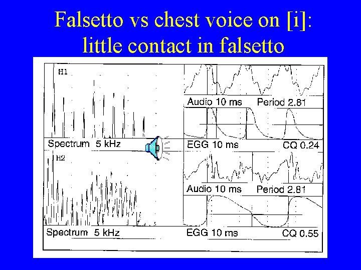Falsetto vs chest voice on [i]: little contact in falsetto