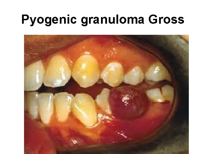 Pyogenic granuloma Gross