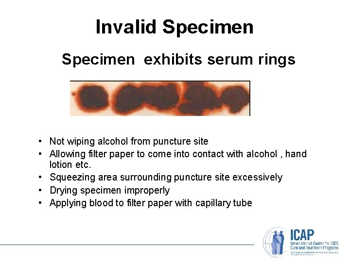 Invalid Specimen exhibits serum rings • Not wiping alcohol from puncture site • Allowing