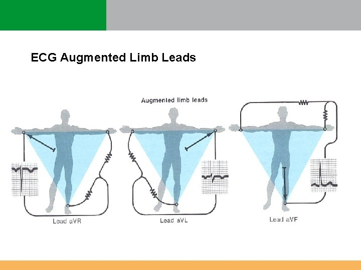 ECG Augmented Limb Leads